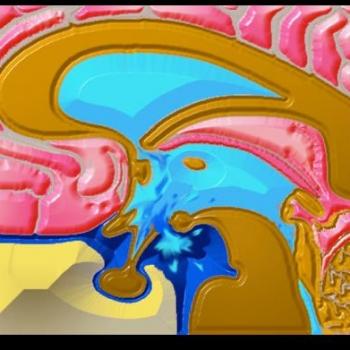 hidrocefalia-04