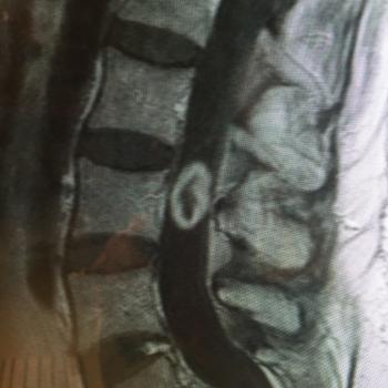 tumores-medulares-02